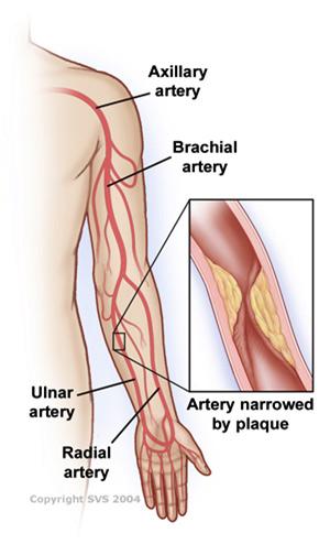 Arm Artery Disease Siu School Of Medicine